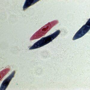 PH004 - Paramecium