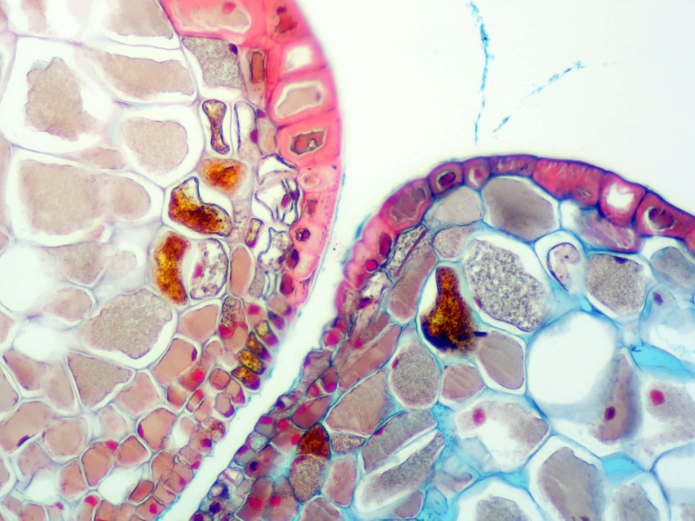 PLH019 - Pine Life History - Valley Microscope